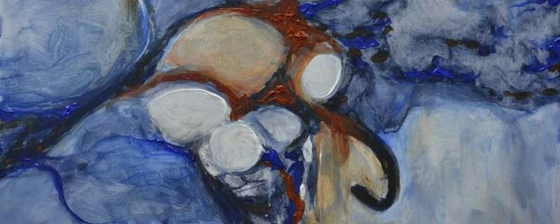 7. Abstract I